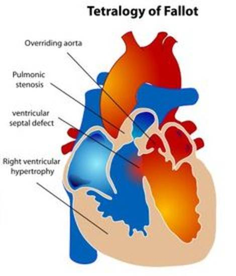 20 Facts About Tetralogy Of Fallot